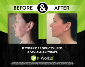 It Works Body & Wrap Chin & Neck Before & After